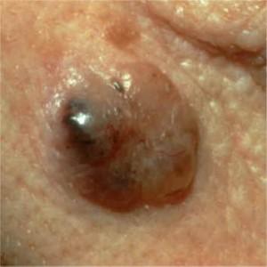 Carcinoma basocelular pigmentado