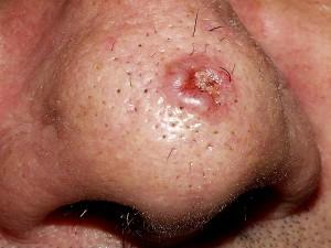 carcinoma_basocelular24
