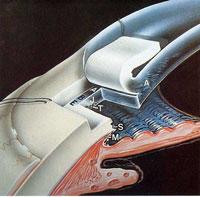 Trabeculectomía